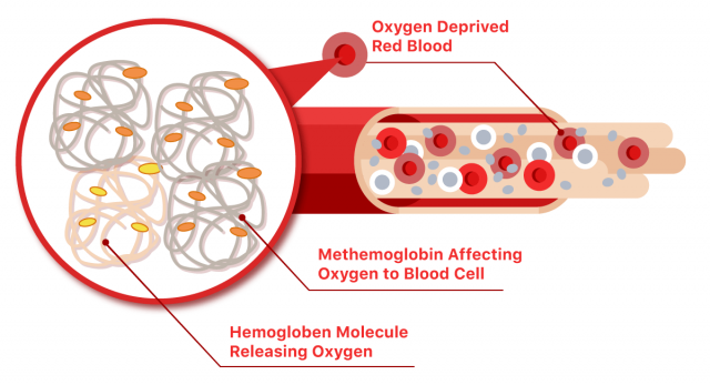 Methemoglobin illustration that shows low oxygen in the blood stream