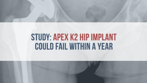Study: Apex K2 Hip Implant Could Fail Within a Year