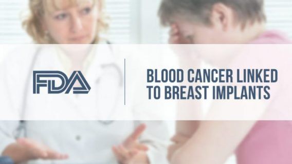 Cancer Linked to Breast Implants