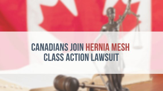 Canadians Join Hernia Mesh Class Action Lawsuit