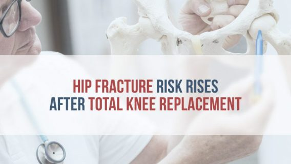 Total Knee Replacement Increases Hip Fracture Risk