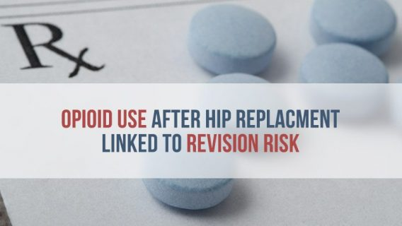 Opioid Use After Hip Replacement Linked to Revision Risk