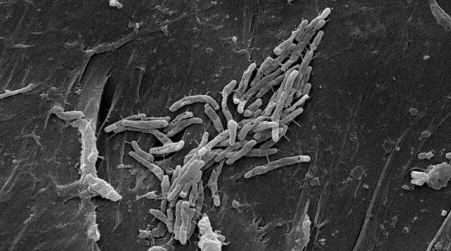 Closeup image of M. fortuitum Mycobacterium