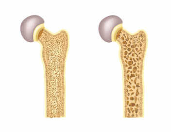 Bone With and Without Osteoporosis