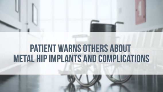 Patient Warns Others About Metal Hip Implants and Complications