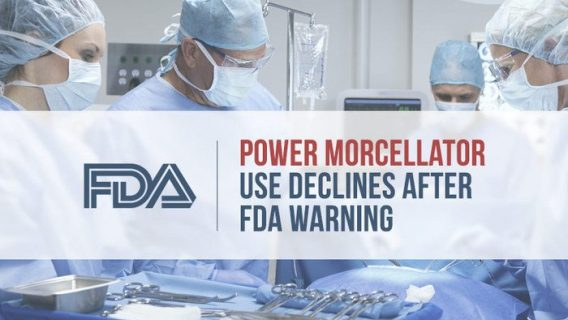 Power Morcellator Use Declines after FDA Warning