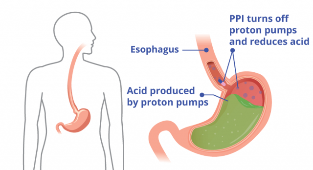 Diagram showing how PPIs reduce acid