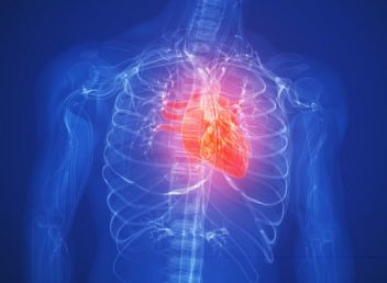 Heart Attack Highlighted on X-Ray