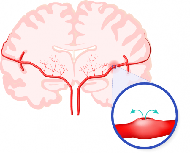 Internal brain hemorrhage illustration