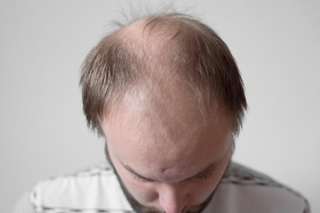Middle Aged Man with Hair Loss