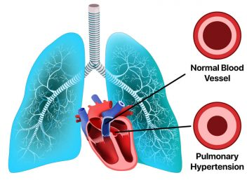 pulmonary hypertension illustration