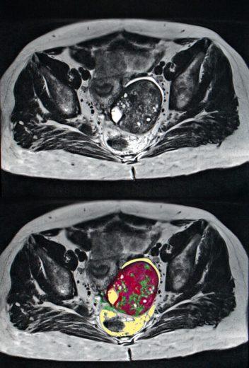 Talcum Powder Ovarian Cancer Causes Studies Symptoms