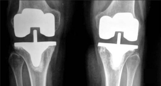 Knee Replacement X-Ray