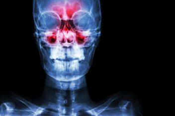 Sinusitis X-Ray