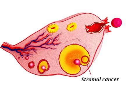 stromal cancer diagram