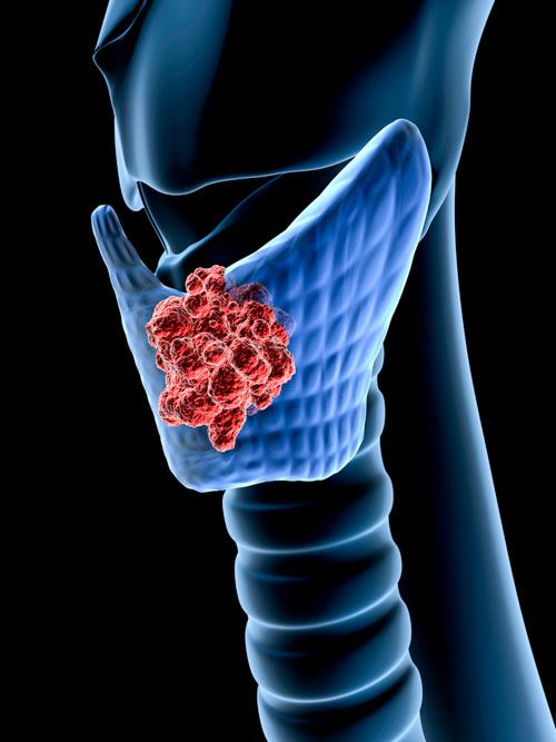3D rendering of thyroid cancer