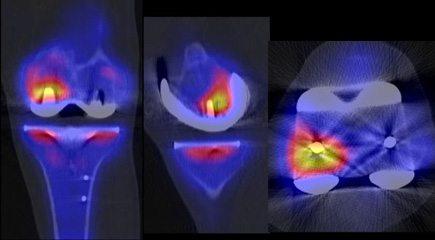 Knee Replacement Recalls: DePuy, Zimmer & Stryker Knee Implants