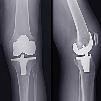 total knee replacement xray
