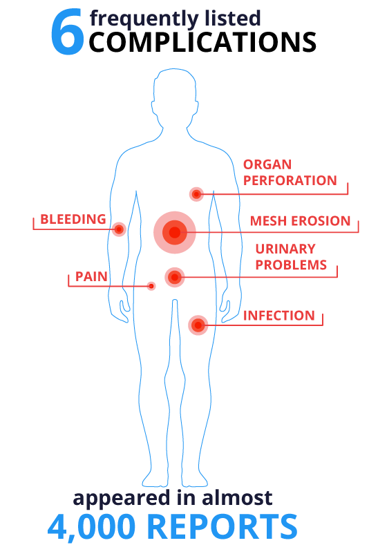 Frequent Mesh Complications Diagram