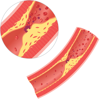 Illustration of Blood Clot Close Up
