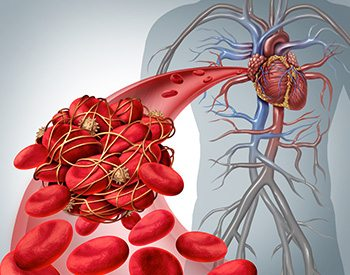 Illustration of blood clots
