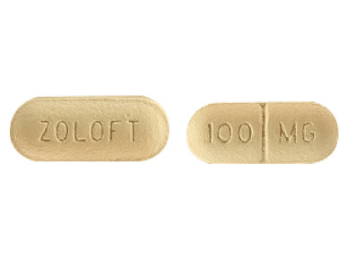 Post-ssri sexual dysfunction zoloft lawsuit
